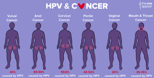 HPV on the curriculum